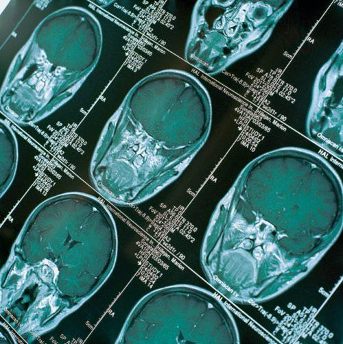 Aufnahmen einer Computertomografie vom Kopf