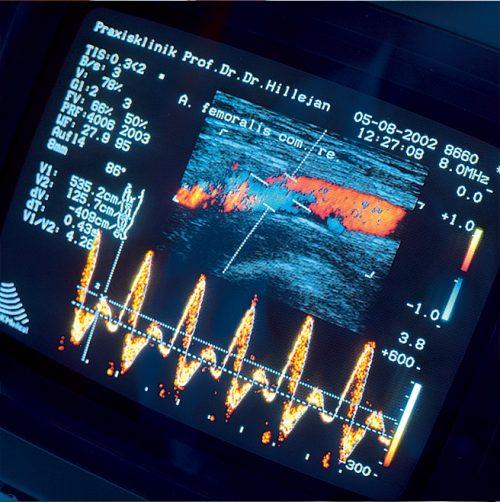 Farbliche Wiedergabe eines Ultraschallbilds auf dem Monitor